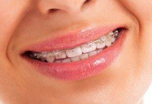 aparat ortodontyczny stały