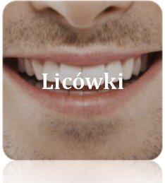 licówki na zęby