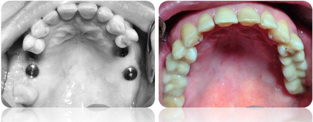 implanty korony MJ15cut