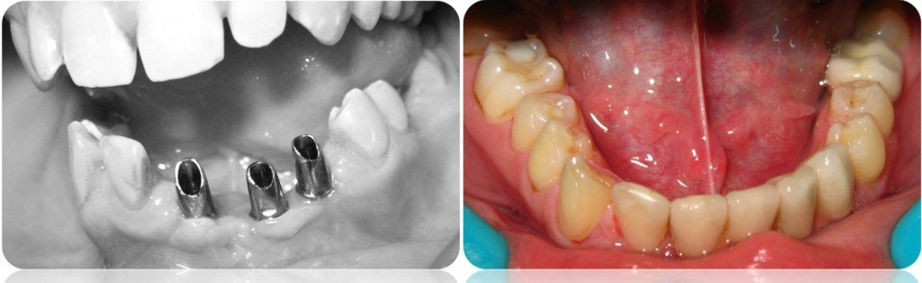 implanty korony MJ16cut