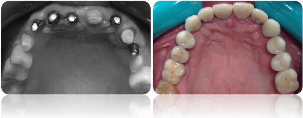 implanty korony MJ17cut