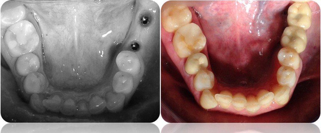 implanty korony MJ1cut