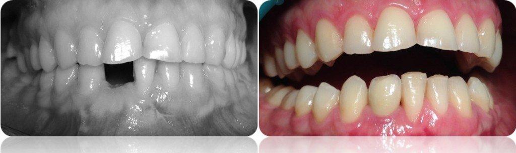 implanty korony MJ2cut