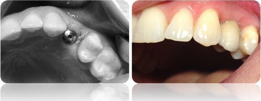 implanty korony MJ6cut