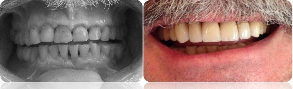 implanty korony MJ8cut