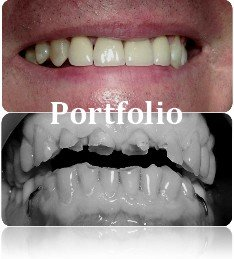 portfolio galeria Dental White 1