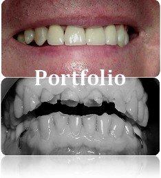 portfolio galeria Dental White 1