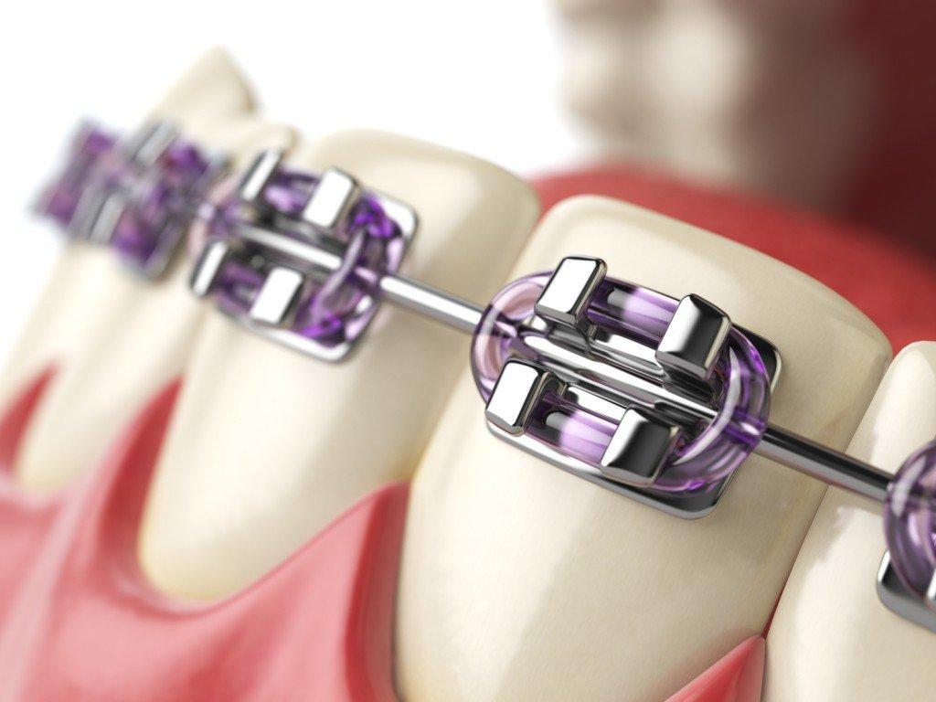 aparat ortodontyczny warszawa wola