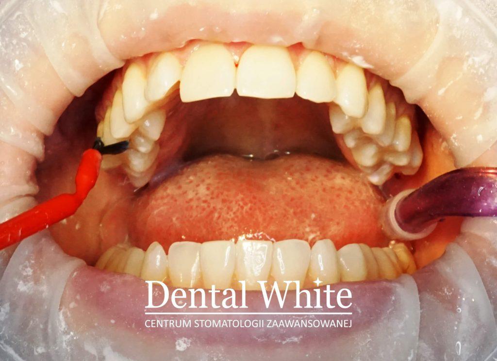 fluoryzacja Dental White Warszawa