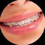 Aparat ortodontyczny a higiena jamy ustnej
